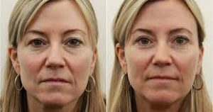 blepharoplastie Tunisie photos