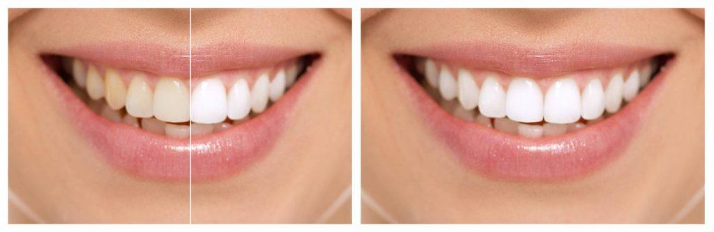 facette dentaire avant après